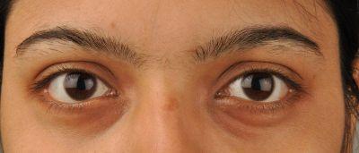 Ako sa zbaviť kruhov pod očami?