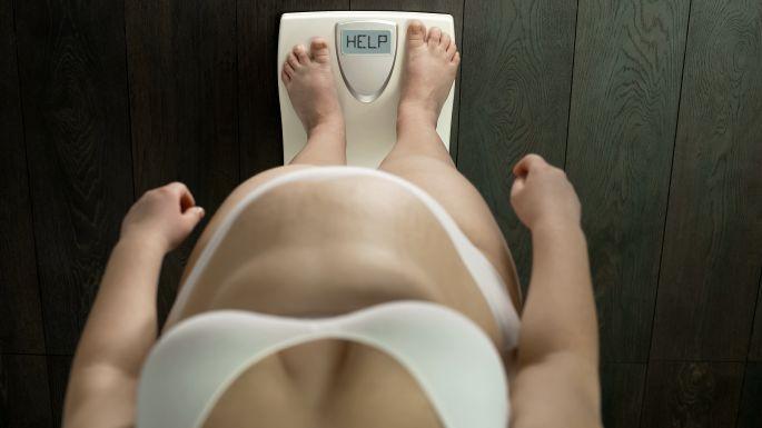 Obezná žena na váhe potrebuje pomoc