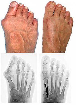 Ochorenie - vbočený palec