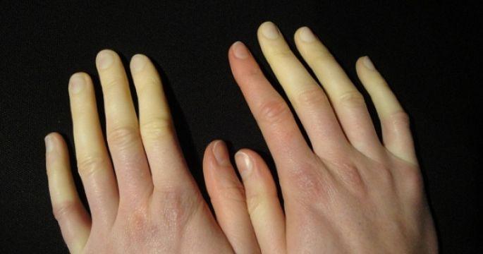 Problém so studenými rukami